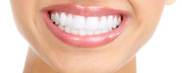 Как да избелим зъбите си у дома?
